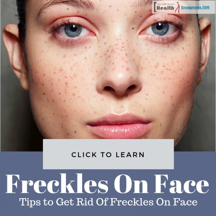 Get Rid Of Freckles On Face
