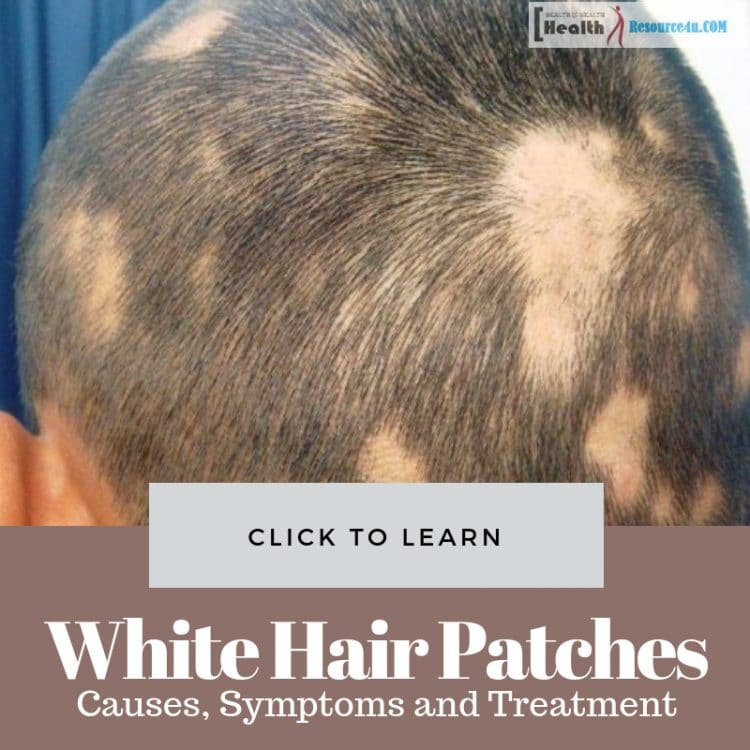White Hair Patches