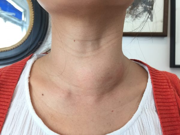 remedies to cure goiter at home