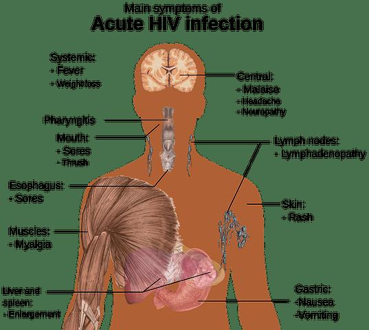 Late Stage HIV Symptoms