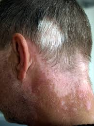 white hair patches treatment