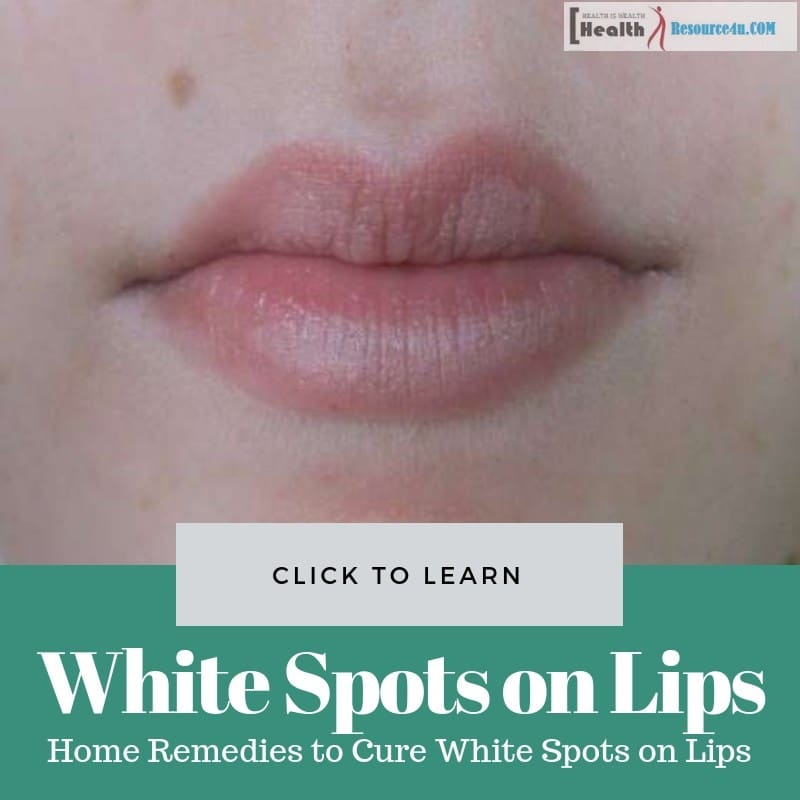 Home Remedies to Cure White Spots on Lips