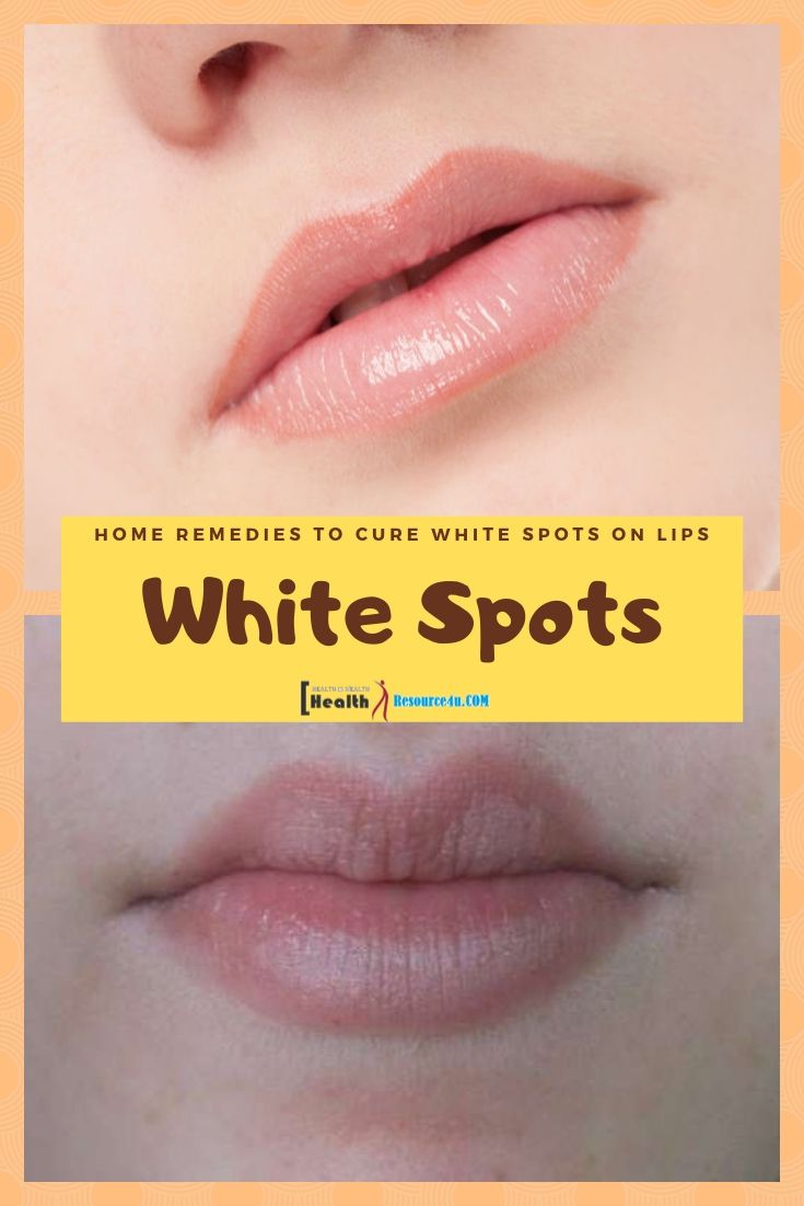 White Spots on Lips