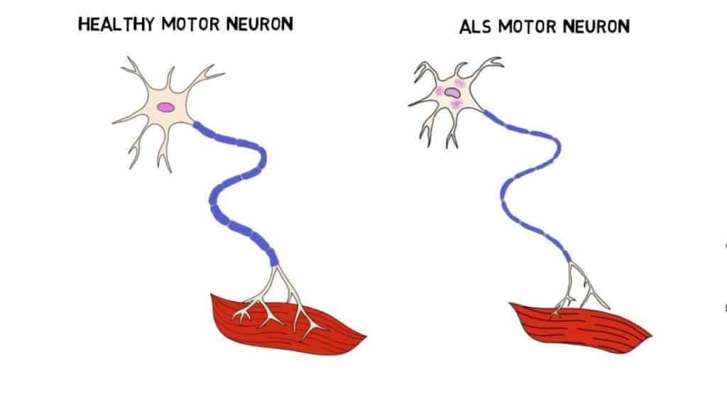 causes of amyotrophic lateral sclerosis