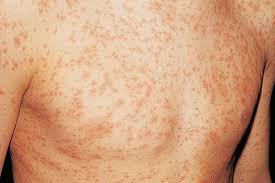 HIV rash symptoms