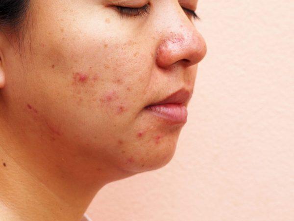 combat bad skin causes