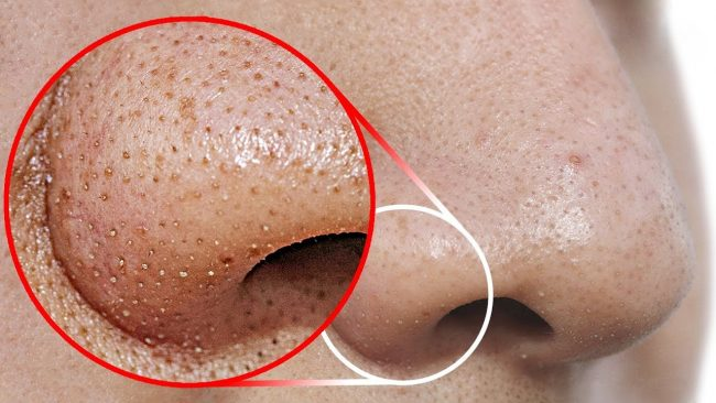 home remedies to treat blackheads