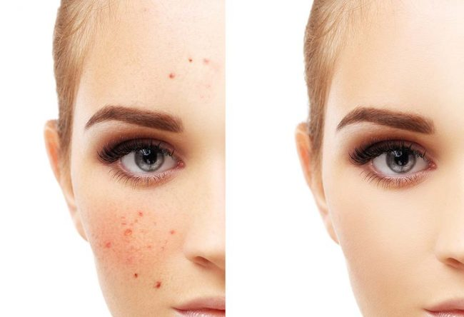 home treatment to cure red spots on skin