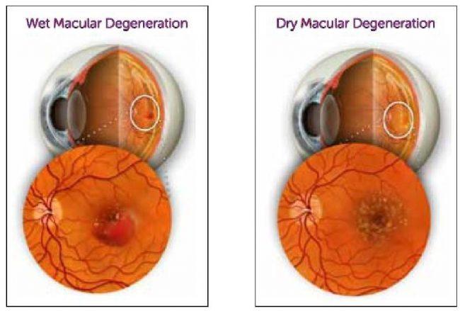 symptoms of macular degeneration