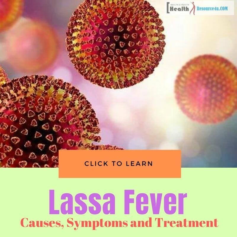 Lassa fever outbreaks