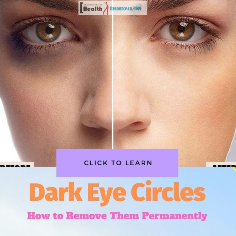 dark eye circle removal