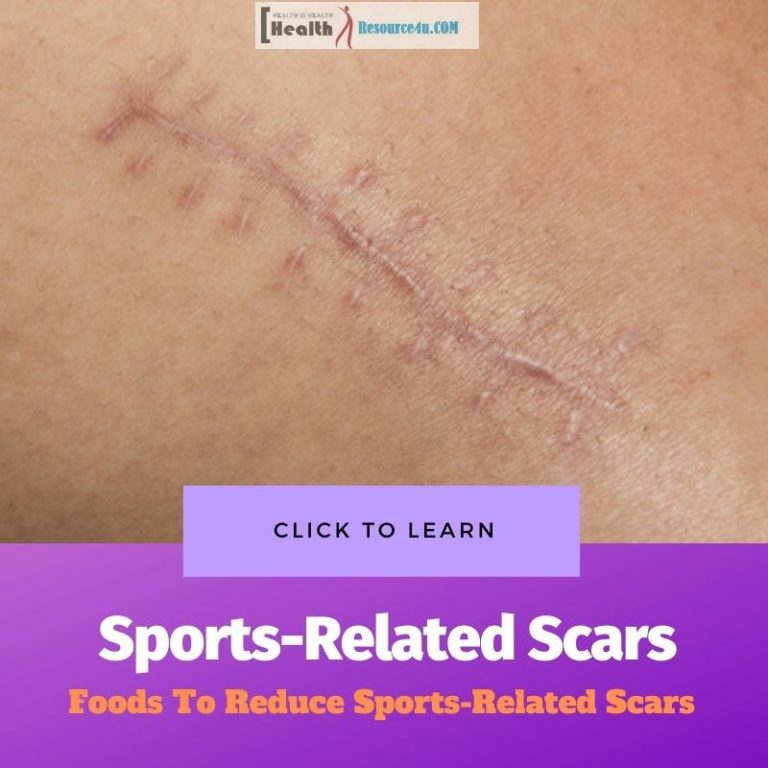Sports-Related Scars