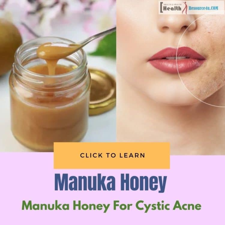 Manuka Honey for Relief in Cystic Acne